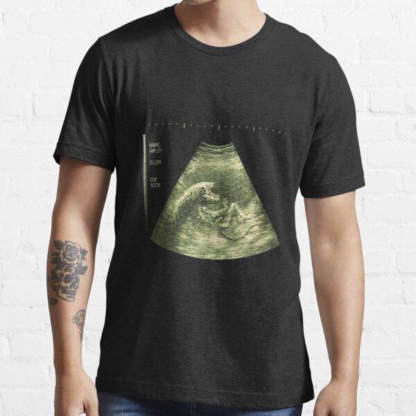 Congratulations, it's a Xenomorph! Essential T-Shirt