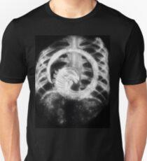Alien Chest Burster X-Ray T-Shirt