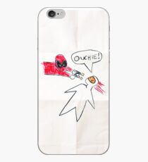 Ouchie! iPhone Case
