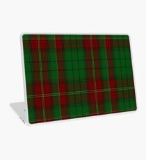 00185 Ulster (Red) District Tartan  Laptop Skin