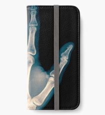 x-ray of wrist, hand and fingers iPhone Wallet/Case/Skin