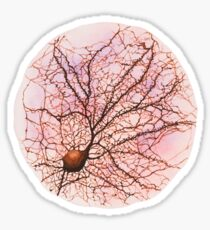 Dendritic tree and spines of an hippocampal neuron - watercolour - Pink Sticker