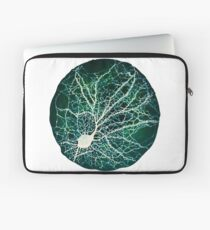 Dendritic tree and spines of an hippocampal neuron - Nebula Laptop Sleeve