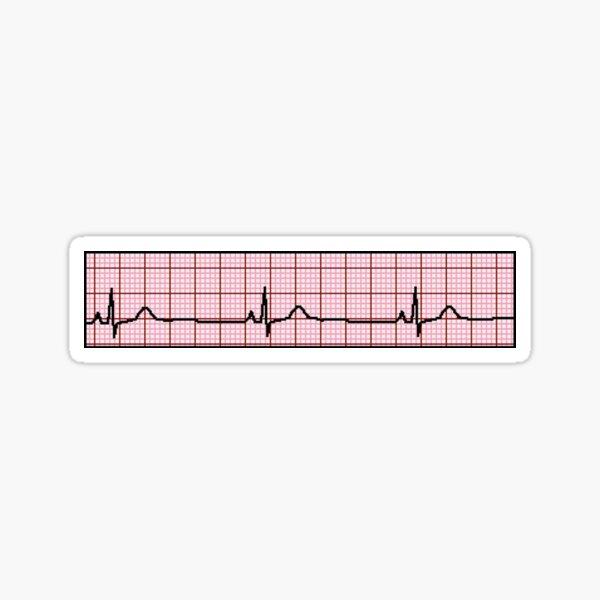 Original ECG Sticker