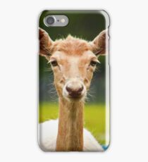 Eyebrows and Wiskers iPhone Case/Skin