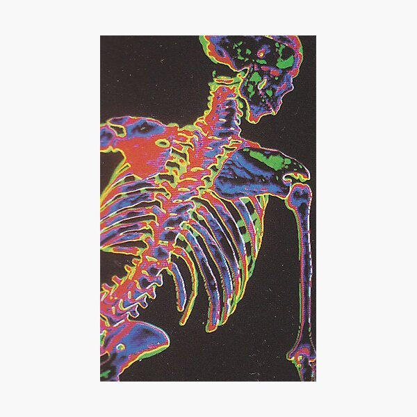 Thermal Skeleton Medicine's new vision Photographic Print