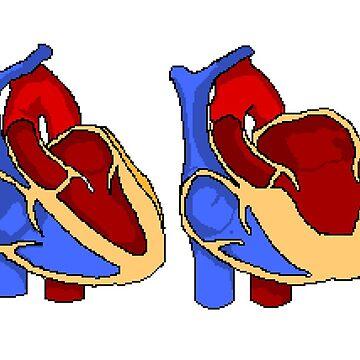 Hypertrophic Cardiomyopathy by JohnnyCarotid