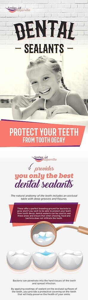 Protect Your Teeth from Tooth Decay with Dental Sealants by Dentist Naperville