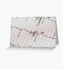 Extrasystoles On Electrocardiogram Greeting Card
