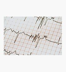 Extrasystoles On Electrocardiogram Photographic Print