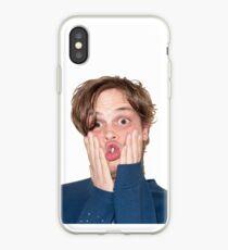 Matthew Gray Gubler Random Picture iPhone Case