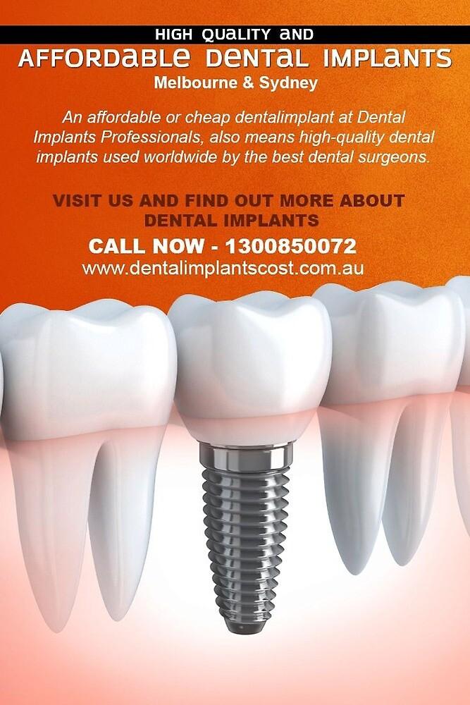 High Quality and Affordable Dental Implants Melbourne & Sydney by dentalimplantsc