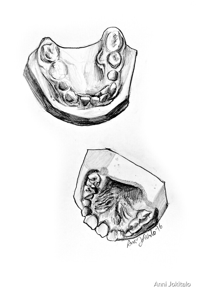 Teeth mold print (black and white) by Anni Jokitalo