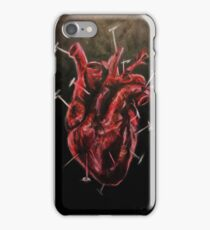 Pins & Needles iPhone Case/Skin