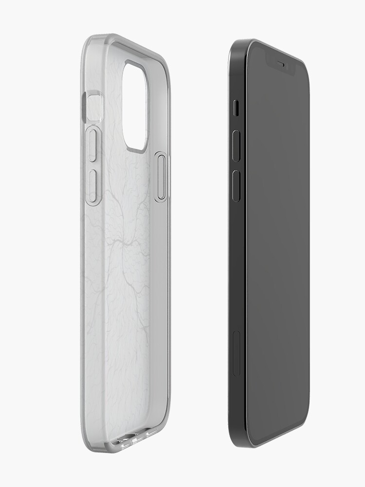 Alternate view of Art  iPhone Case