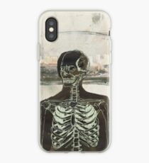 The Naked Stare  iPhone Case