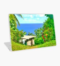 Shack with a View Laptop Skin