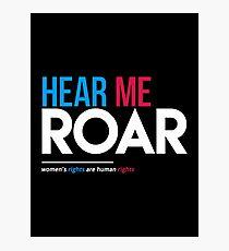 Hear Me Roar (Frauenrechte sind Menschenrechte) Fotodruck