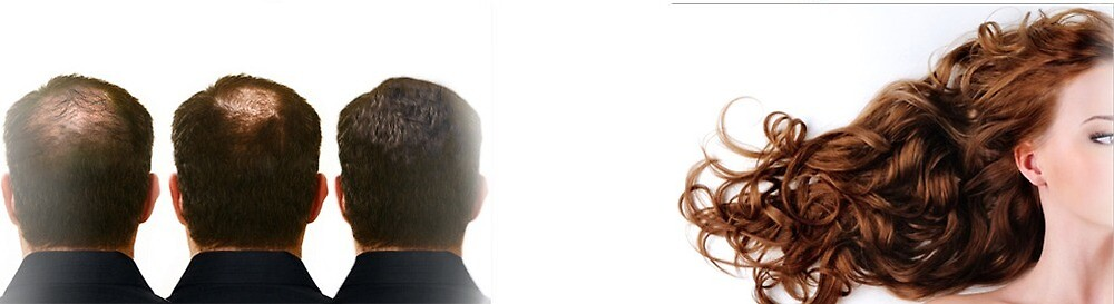 PRP Hair Loss Treatment For Prefect Growth by soniya