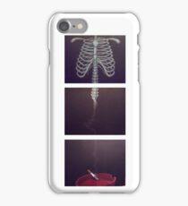 Smoking Bones iPhone Case/Skin
