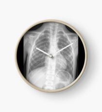x-ray Clock