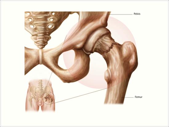 Láminas artísticas «Anatomía de la fractura de cadera» de ...