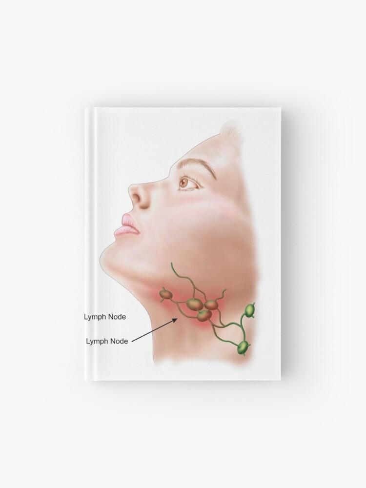 Anatomie des ganglions lymphatiques enflés. | Carnet cartonné