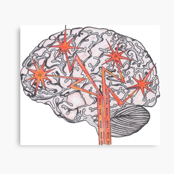 Brain Plasticity Canvas Print