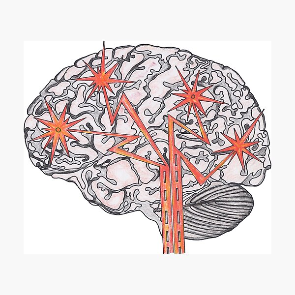 Brain Plasticity Photographic Print