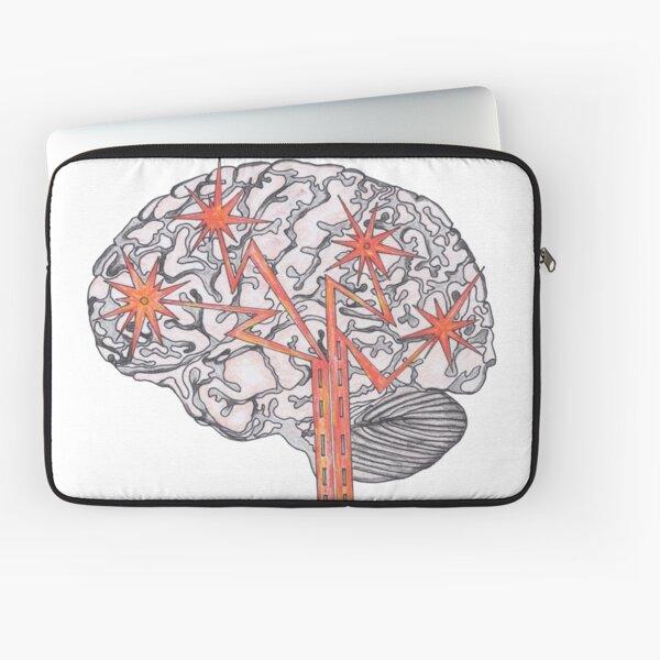 Brain Plasticity Laptop Sleeve