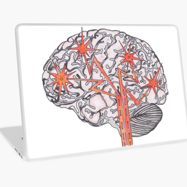 Brain Plasticity Laptop Skin