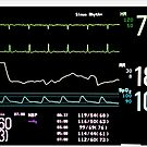 ICU Monitor Screen with Heart Rate, Blood Pressure, Oxygen Saturation and Respiratory Rate Tracings by DrDetective .