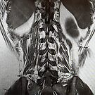 Lumbar Lumbar Paraspinous Muscles with Lower Lungs, Liver and Spleen by DrDetective .