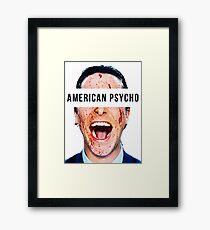 You Have Bale  Framed Print