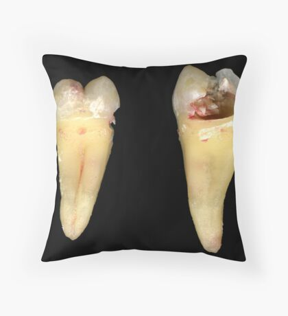 Bad day at the dentist Throw Pillow