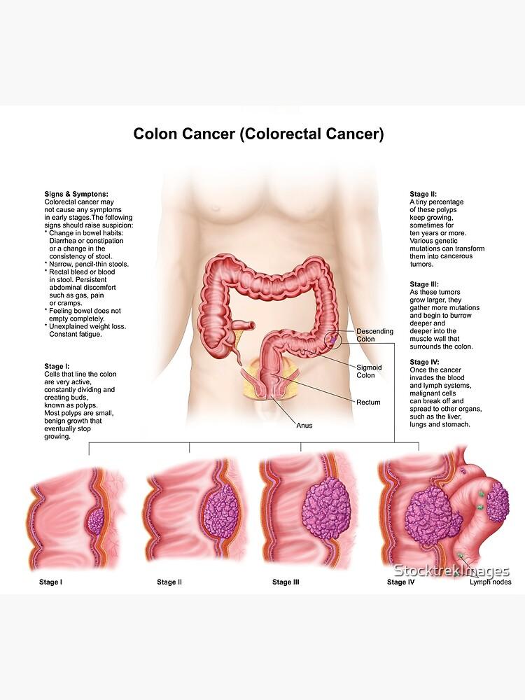 Cancer de colon etapas Cancer - Wikipedia - Cancer de colon etapas