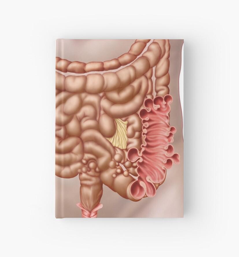 Cuadernos de tapa dura «Diverticulitis en la región del colon ...