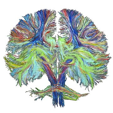 Tractography on white by Milartis