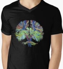 Tractography on black T-Shirt