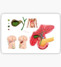 Illustration depicting cholecystectomy, the surgical removal of the gallbladder. Sticker