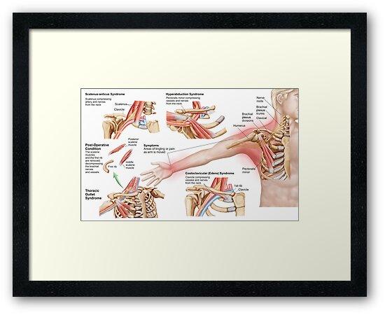 Láminas enmarcadas «Ilustración médica que detalla el síndrome de ...