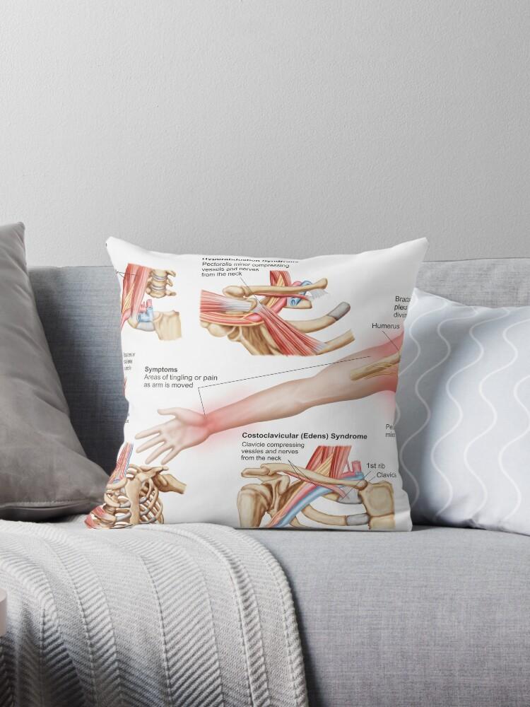 Cojines «Ilustración médica que detalla el síndrome de salida ...