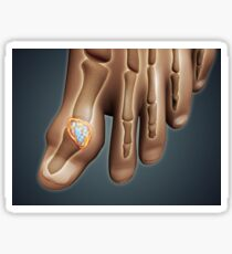 Conceptual image of gout in the big toe. Sticker