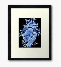Röntgenstrahlen des Herzens Gerahmtes Wandbild