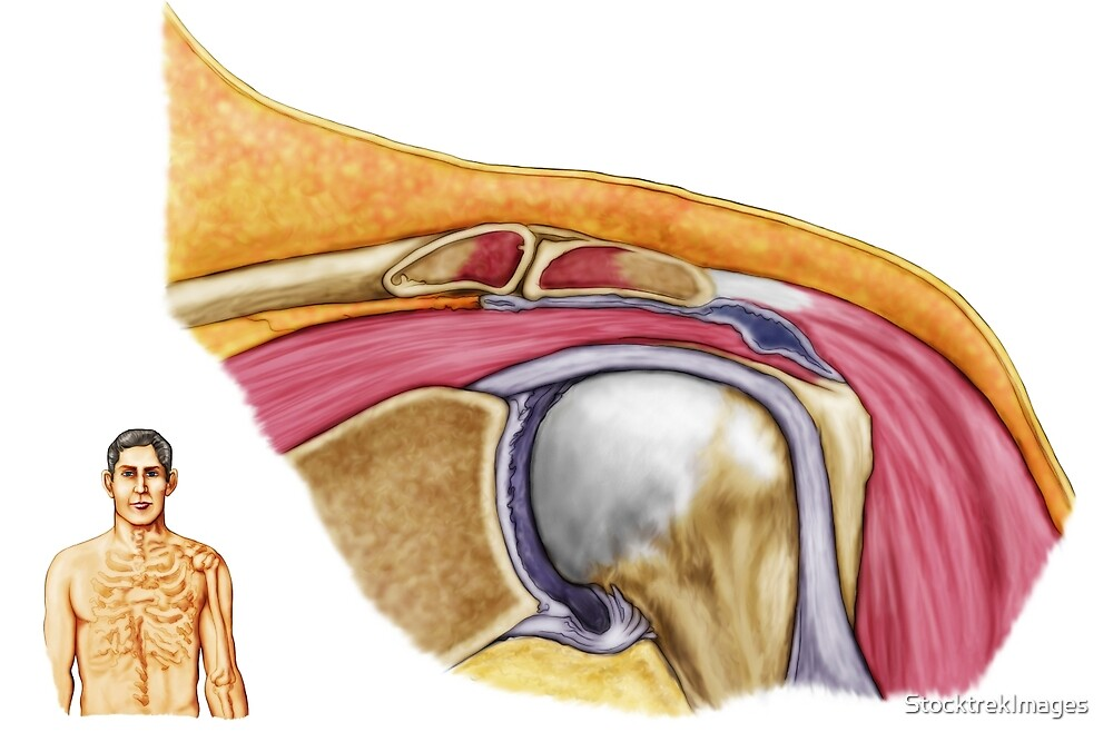 Anatomy Of Left Shoulder Coronal View By Stocktrekimages Redbubble