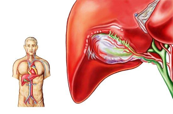 Pósters «Anatomía del ganglio de la vesícula biliar.» de ...