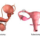 Biomedical illustration of a vasectomy and tubectomy. by StocktrekImages