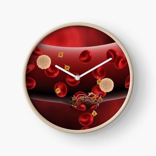 Blood clotting inside artery. Clock