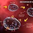 Mast cell releasing histamine due to allergic reaction. by StocktrekImages
