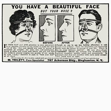 You Have a Beautiful Face - But Your Nose? c. 1917 by CircaWhat